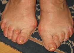 oedeme doigt de pied