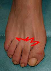 douleur aux orteils du pied gauche