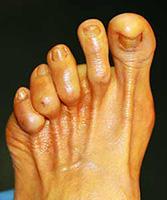 probleme doigt de pied